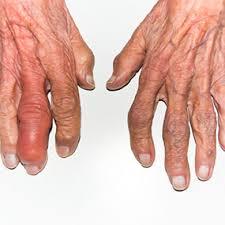 Image result for Arthritis women