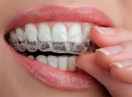 Отбеливание <b>зубов</b> в домашних условиях - Стоматология ...
