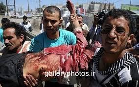 نتیجه تصویری برای یمن