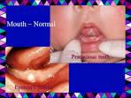 precocious dentition