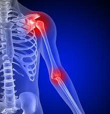 Image result for hand and shoulder pain