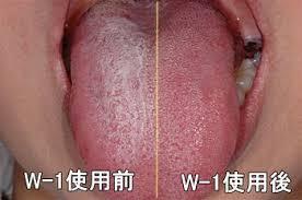 「舌ブラシ」の画像検索結果