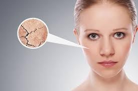 Resultado de imagen para El debilitamiento de la piel
