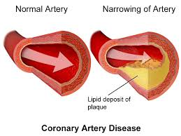 circulatory system function parts role schoolworkhelper coronary artery disease