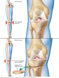 <b>Knee</b> osteotomy - Mayo Clinic