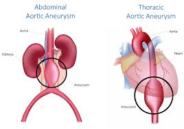 Image result for aortic aneurysm