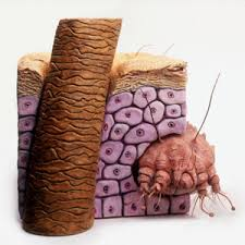 Image result for Scabies images