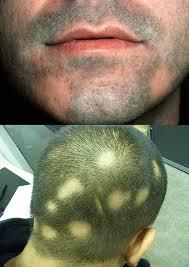 Облысение бороды у мужчин