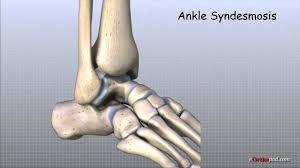 <b>Ankle</b> Anatomy Animated Tutorial - YouTube