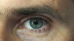 Image result for wrinkle in men eyeball