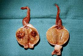 Image result for testicular cancer