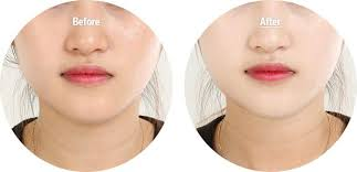 Image result for whitening solution skin