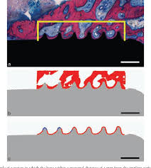 Figure 2 from In vivo performance of <b>zirconia</b> and titanium implants ...