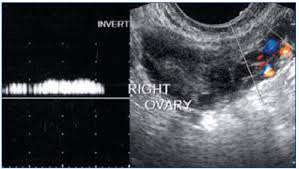 Image result for woman and ovary