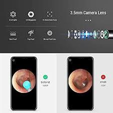 BEBIRD M9 Pro Otoscope, Smart Visual Ear Cleaning ... - Amazon.com