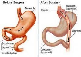 Resultado de imagem para imagem cirurgi bariátrica