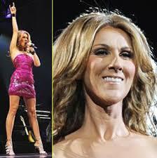 Celine Dion no 1. Live Albums: 1985: Celine Dion en Concert 1994: A l'Olympia 1996: Live a Paris 1999: Au coeur du stade 2004: A New Day. - celine-dion-london