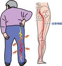 「腰痛 足 イラスト」の画像検索結果