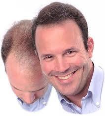 Как лечить облысение у мужчин луком