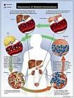 ketoacidosis