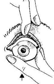 INSERTING AND REMOVING THE ARTIFICIAL <b>EYE</b>, Asprion ...