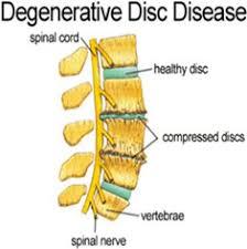 Resultado de imagem para degenerative disease