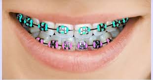 Image result for braces photos
