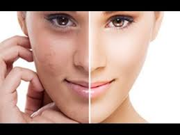 Image result for skin whitening