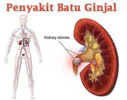 Image result for batu ginjal