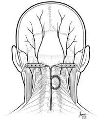 Occipital nerve stimulator
