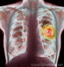 pengobatan paru-paru bocor