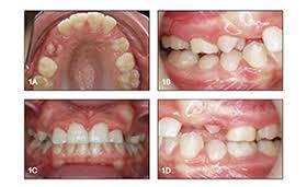 <b>3M</b> Orthodontics   Innova