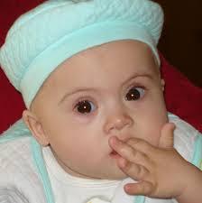 Դաունի սինդրոմով ծնված եւ Հայաստան բերված 11-ամսական բալիկը մահացել է