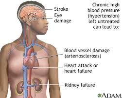 Image result for hypertension prevention and treatment