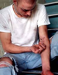 Image result for heroin abuse