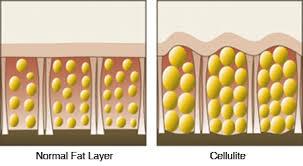 نتيجة بحث الصور عن Cellulite