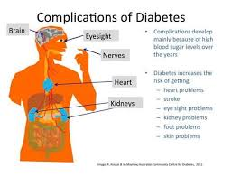 The aim of this paper is to provide a comprehensive review of the epidemiological evidence linking type   diabetes mellitus and its related conditions