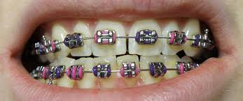 Dental braces - Wikipedia