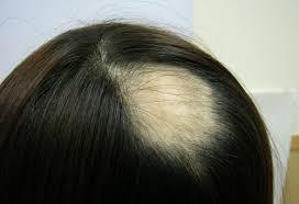 「禿頭 画像」の画像検索結果