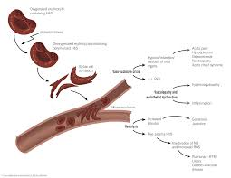sickle cell disease scd mcmaster pathophysiology review pathophysiology of sickle cell disease