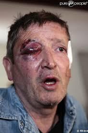 Jean-Michel André, juste après son agression (et l'enlèvement de sa fille) en mars 2009. 12/12. News publiée le Jeudi 28 Mai 2009 à 10:10 - 222199-jean-michel-andre-juste-apres-son-637x0-2