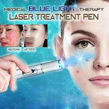 Laser Freckle Dark Spot Acne Removal Pen <b>Medical Blue Light</b> ...