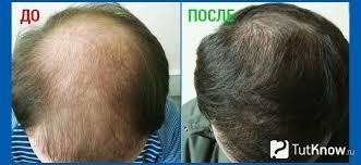 Потеря волос у мужчин в раннем возрасте
