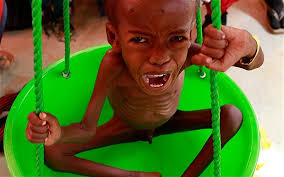 Ibrahim Mohamed, a four-year-old refugee boy from Baidoa region in Somalia, cries as he is weighed to check for acute severe malnutrition Photo: REUTERS - ibrahim-mohamed_1971201b