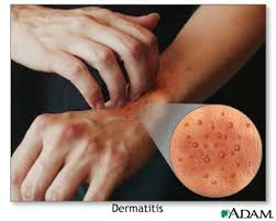 Image result for types of eczema images