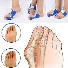 <b>1 Pair Toe Straightener</b> Bunion Adjuster Orthotics Hallux Valgus ...