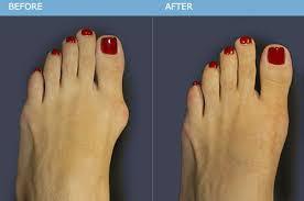 Houston podiatrist treats painful bunions on feet