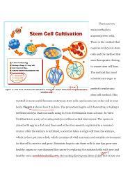 Stem Cell Essay Rubric