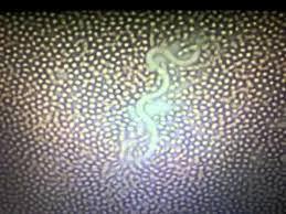 Resultado de imagen de filariosis canina