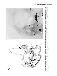 The Otolithic Origin of the Vertical Vestibuloocular Reflex Following ...